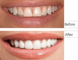 img-cosmetic-dentistry